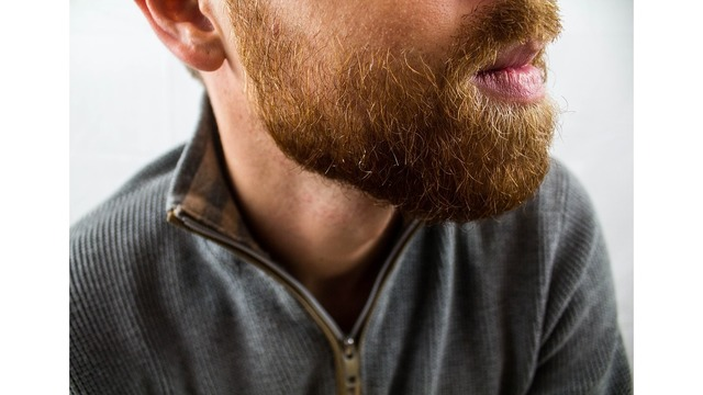 Men with beards carry more germs than a dog's fur, study says